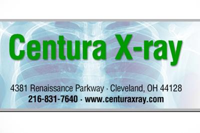 Centura X Ray Whacc